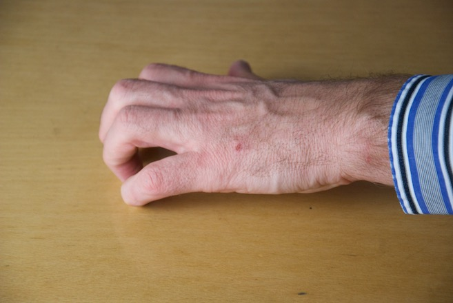 Hand mit gestreckten Grundgelenken