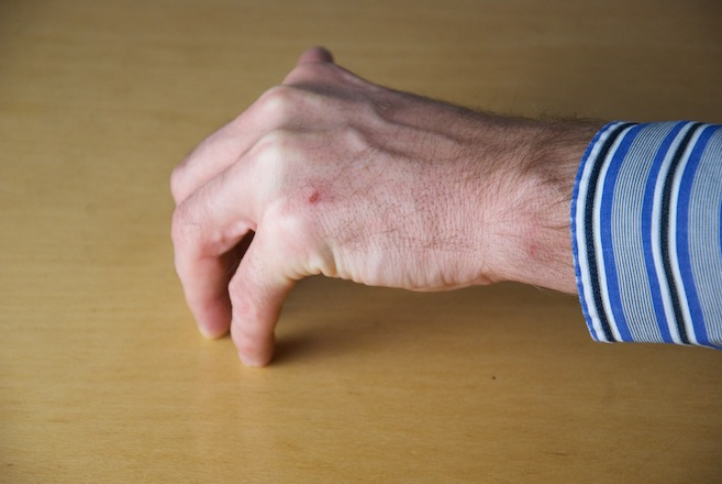 Hand mit gebeugten Grundgelenken